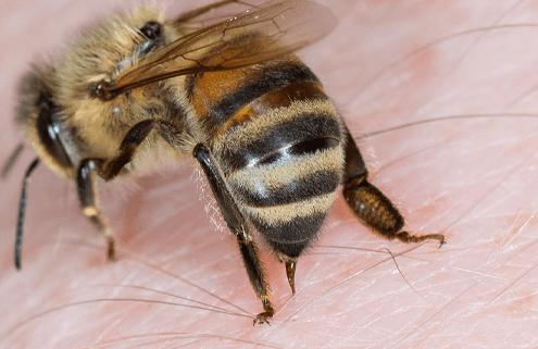 Çocuklarda Arı Alerjisi