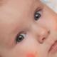 Ne Zaman Çocuk Alerji Uzmanına Gidilmesi Gerekir ?, Çocuk Alerji Uzmanı