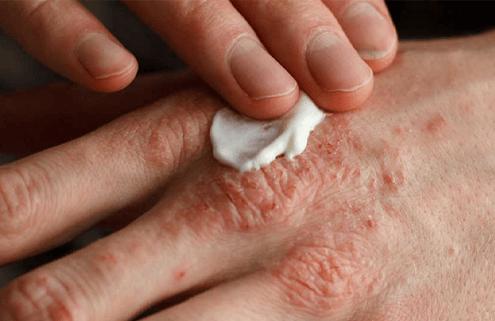 Egzama (Atopik dermatit) nedir?
